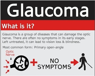 Saving Sight Sunday: Glaucoma Infographic